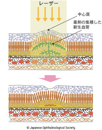 光線力学的療法