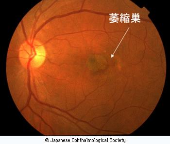 眼底写真でみる網膜の萎縮巣