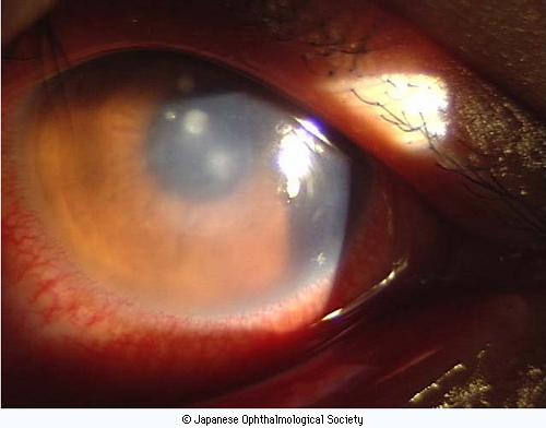 インターネット販売で診察を受けずに生じた角膜潰瘍と眼内炎