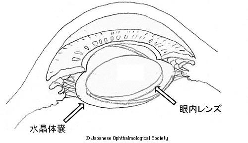 眼内レンズが埋め込まれた目のイメージ